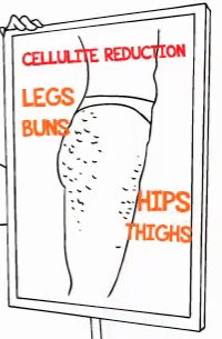 4 Main Cellulite Problem Areas
